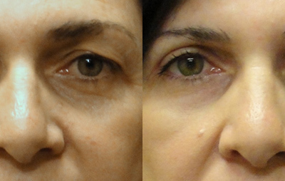 Patient 2 Blepharoplasty - front