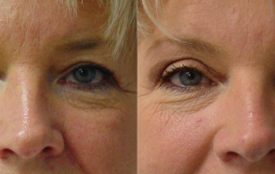 Patient 3 Blepharoplasty - front