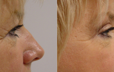Patient 3 Blepharoplasty - side