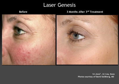 Laser Genesis Treatment