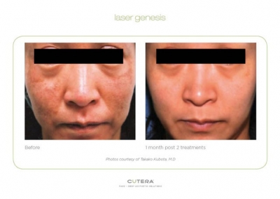 Laser Genesis - Before & After