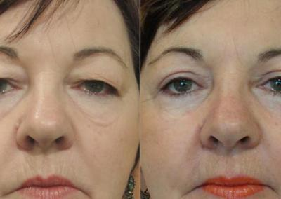 Patient 1 Blepharoplasty - front