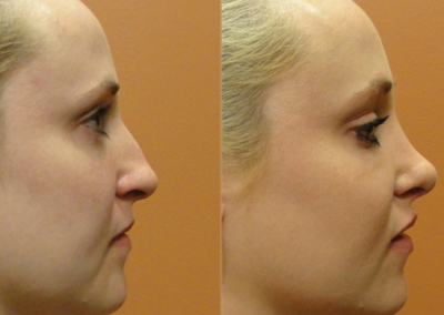 Patient 1 Rhinoplasty - side