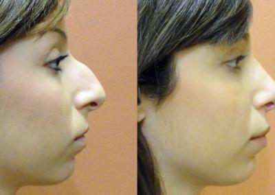 Patient 4 Rhinoplasty - side