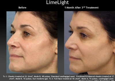 LimeLight Treatment