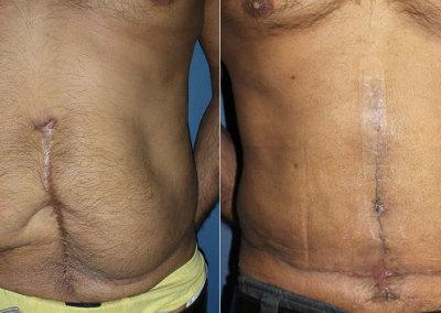Revision Abdominoplasty