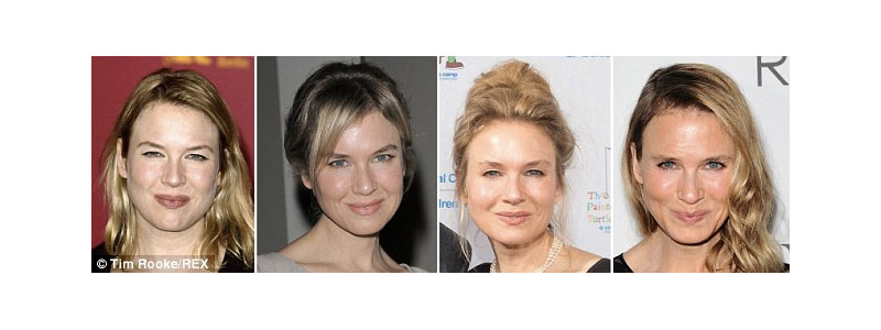 Renee Zellweger's Change of Face