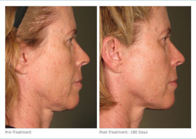 ultherapy_full_face_2-11