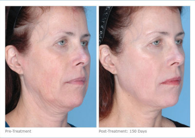 ultherapy_full_face_2-13