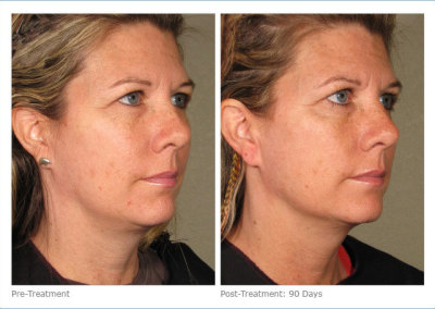 ultherapy_full_face_2-6