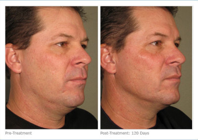 ultherapy_full_face_2-7