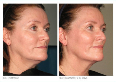 ultherapy_full_face_2-8