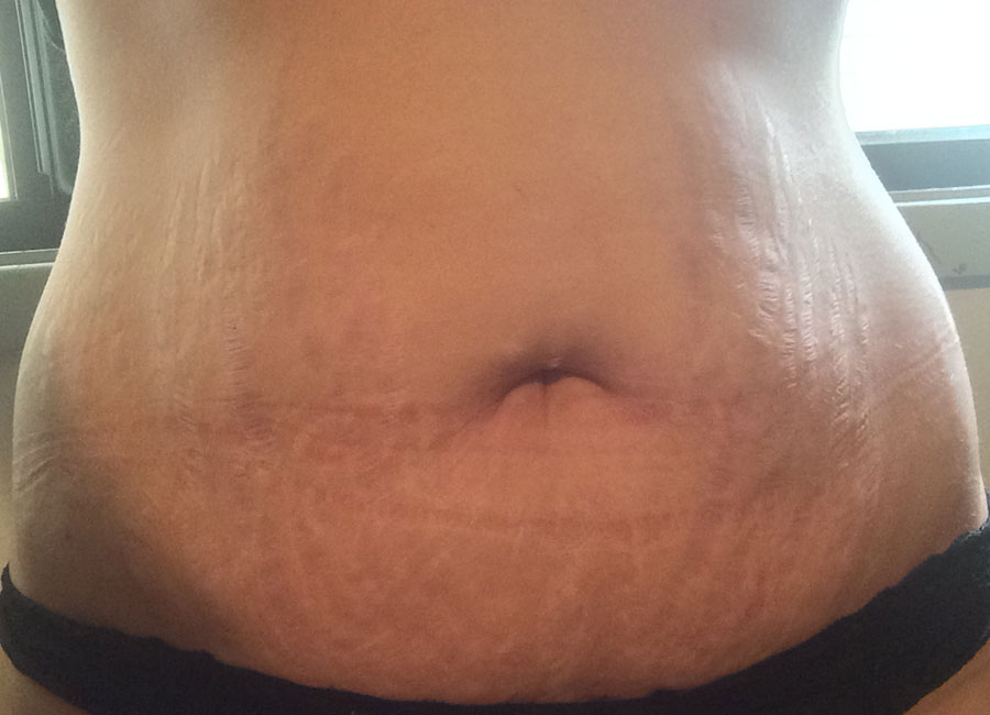 stretch marks on breast area - 900×650
