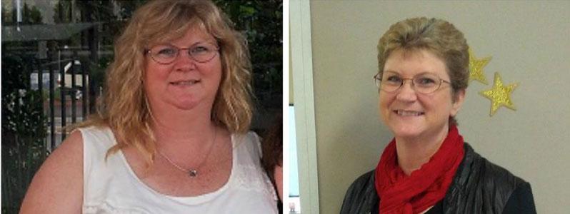 Diane's Story – Breast Augmentation / Tummy Tuck