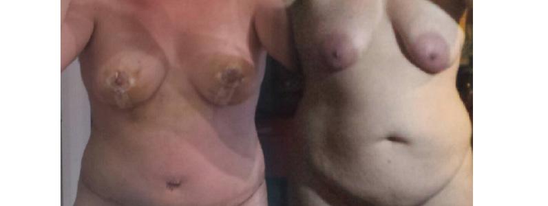 Nicole's Story – Breast Lift, Tummy Tuck (Mastopexy & Abdominoplasty)