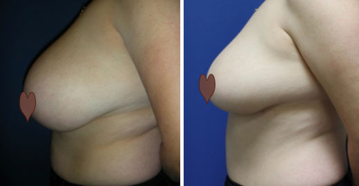 Jeanette's Breast Reduction