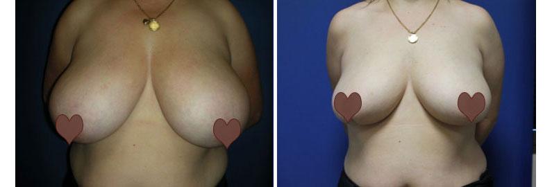 "Jeanette's Breast Reduction, ""I Felt Like a Freak"""