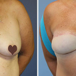 Tina's Bilateral Breast Reconstruction