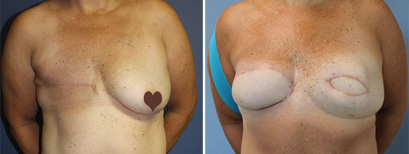 Real Story – Tina's bilateral breast reconstruction & free TRAM flaps