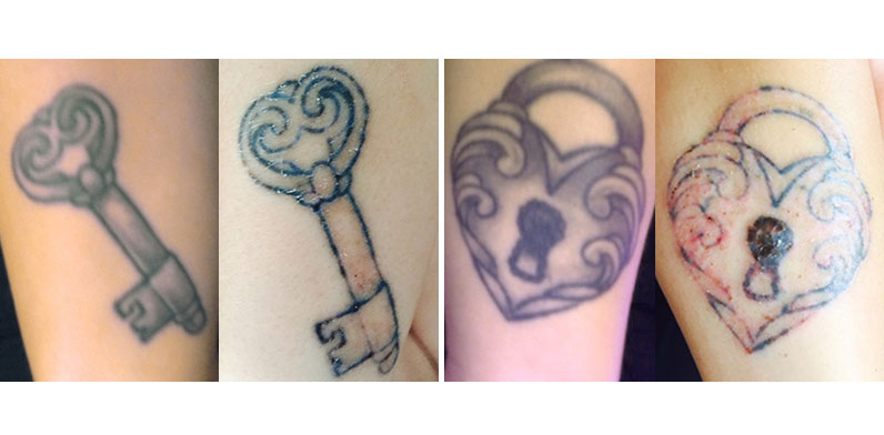 I hate my tattoo – tattoo removal