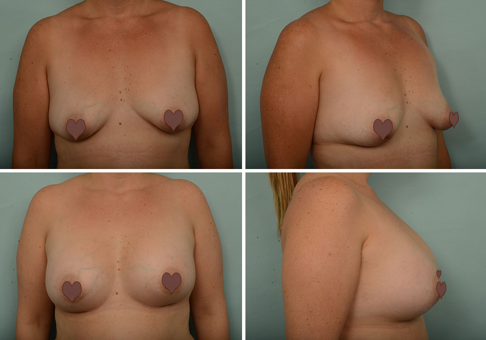 Julie's Breast Augmentation