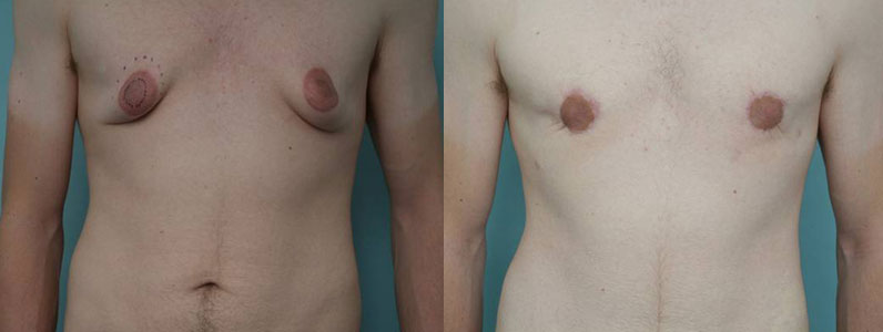 Up Close and Personal with Luke about his gynecomastia