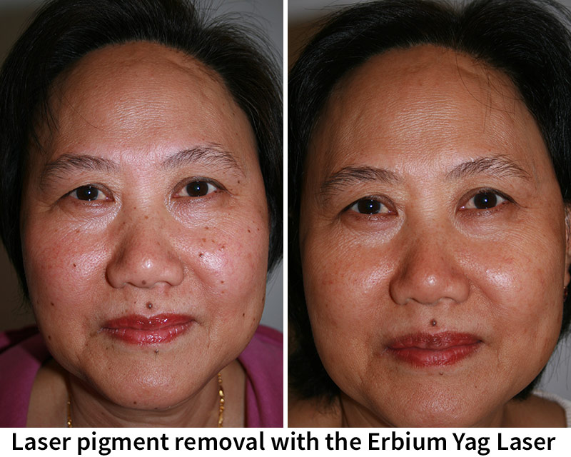 Laser pigment removal with the Erbium Yag Laser