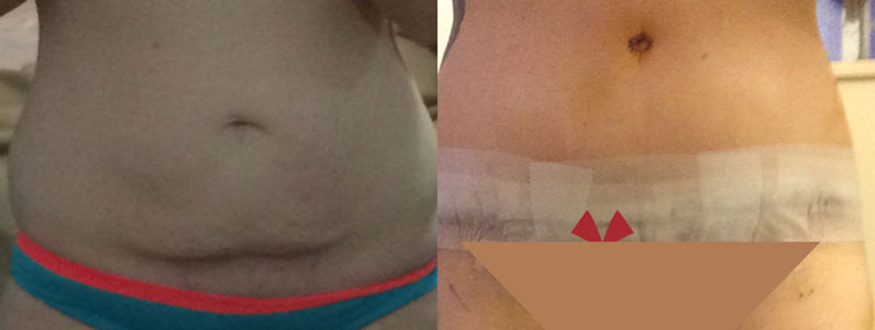 Katie's Trifecta – My tummy tuck, thigh lift & lipo surgery with Dr Mark Hanikeri