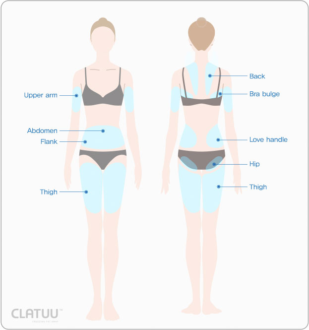 CLATUU Treatment Areas