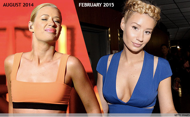 Iggy Azalea's Boob Job - Before & After