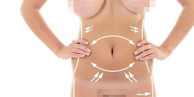 Body Lift / Circumferential Lipectomy