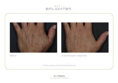 Enlighten Pigmentation Reduction