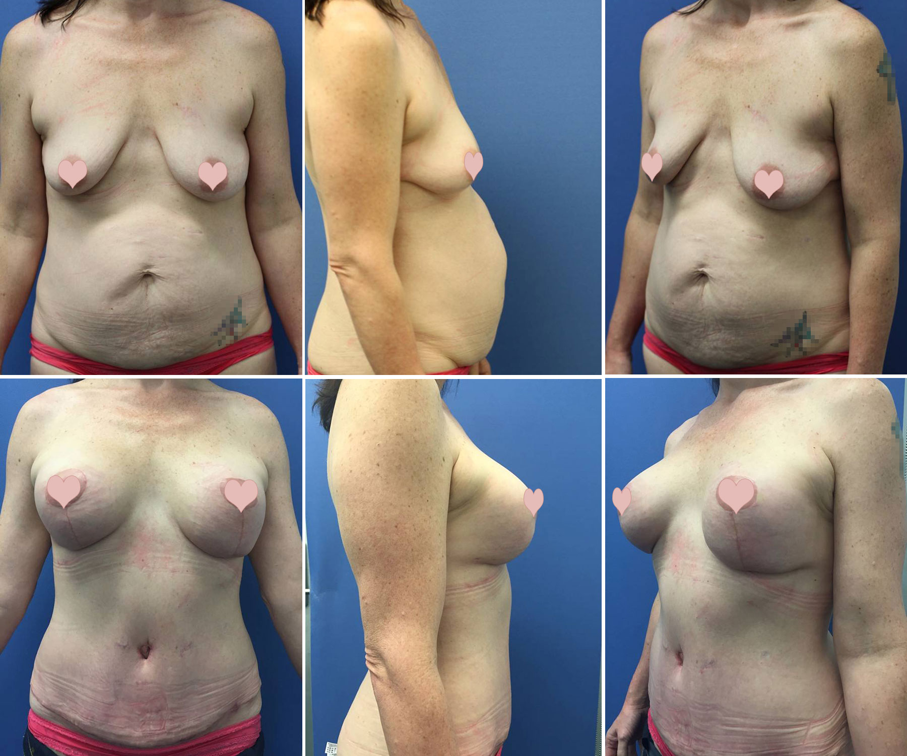 boob-lift-before-and-after-photos