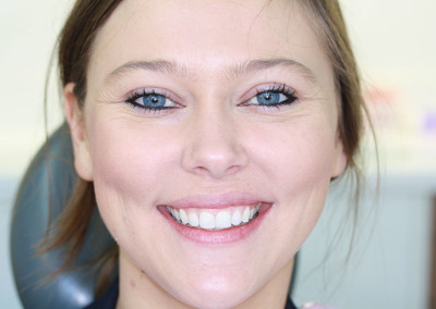 Emily After Invisalign