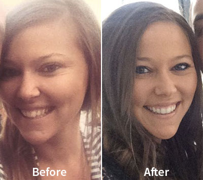 Emily Before & After Invisalign