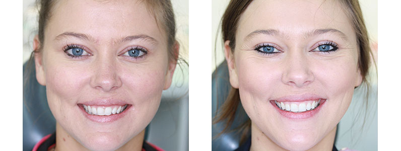 Great Teeth Can Make All the Difference – Emily's Cosmetic Dentistry Story
