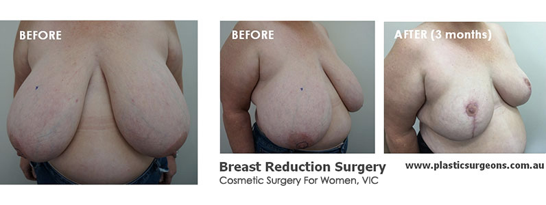 Karen's Breast Burden – Breast Reduction Story