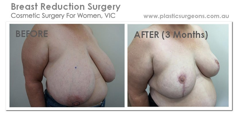 Karen's Breast Reduction
