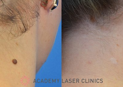 RF Laser Treatment