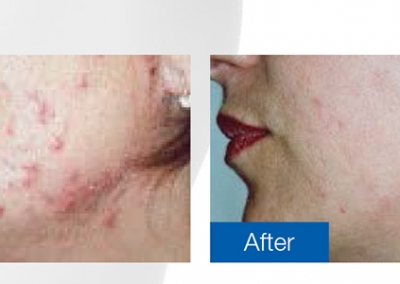Clinical Magma - Before & After