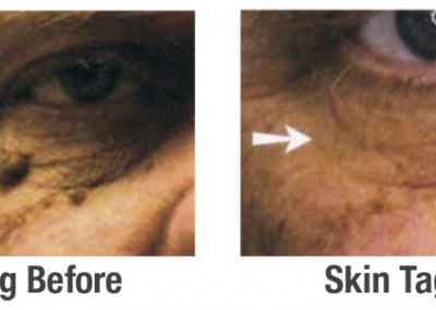 Clinical Skin Clear - Before & After