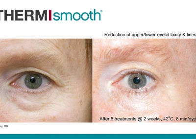 Thermi RF - Before & After