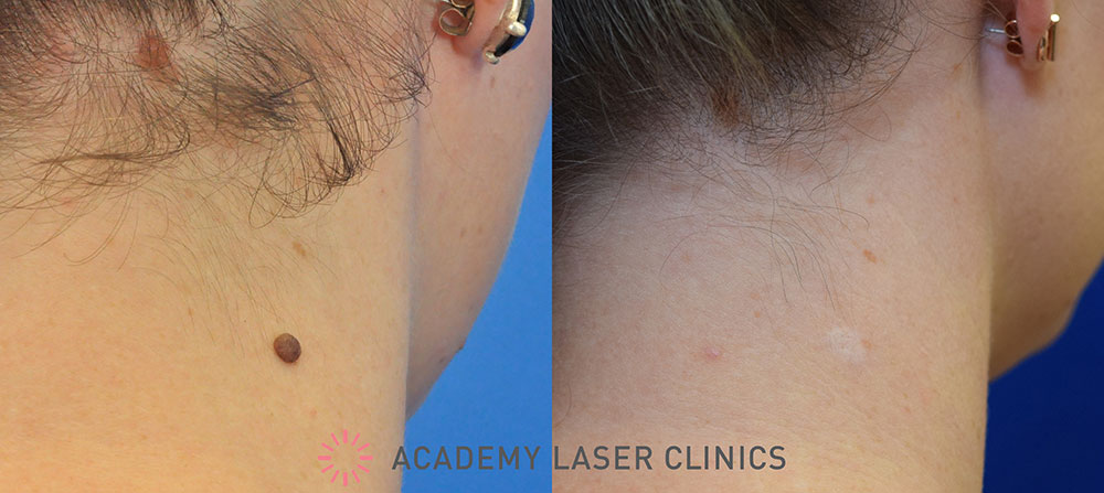 Neck mole removal - Before / 3 months