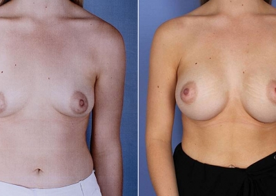 Dr Anh - Breast Augmentation - Before & After