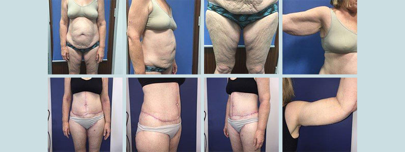 Jo's Story – circumferential body lift, brachioplasty, thigh lift, abdominoplasty and liposuction