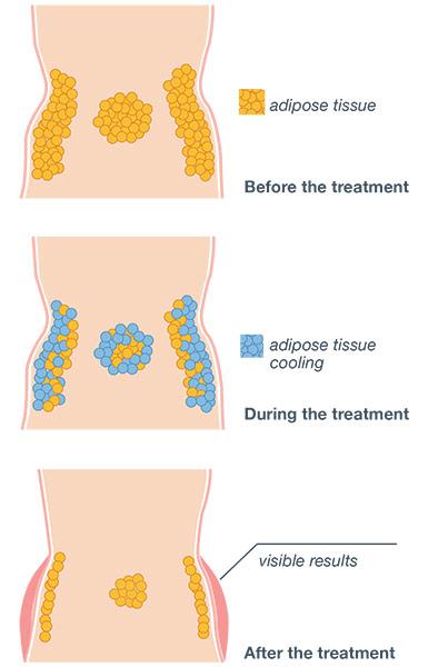 Cooltech treatment