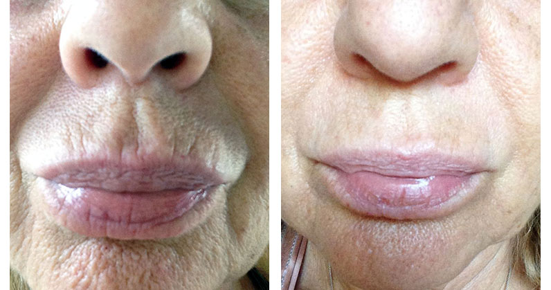 Lip lines before & after