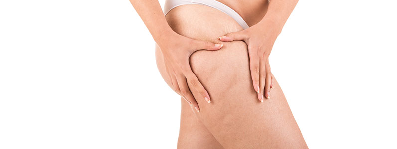 Thigh Surgery – get rid of excess skin and more…