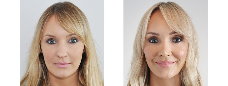 Emily Prepares for Her Wedding with a Rhinoplasty and Aesthetic Treatments
