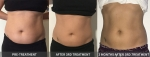Adele truSculpt - Before & After